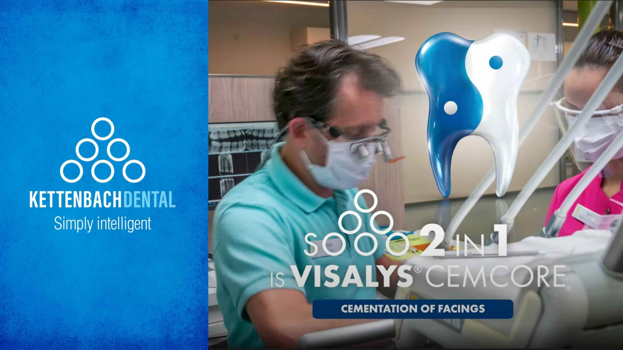 Visalys® CemCore Facings – Cosmetic and Functional Treatment (16 Facings)